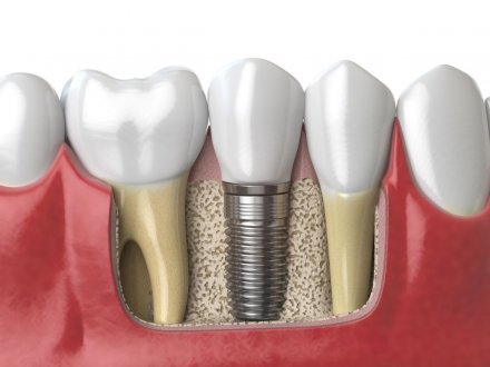 urpi-dental-anatomy-of-healthy-dents-and-tooth-dental-implant-PAF6ZMW